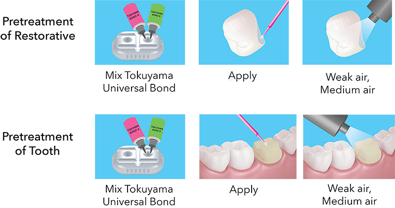Pretreatment of Restorative and Tooth